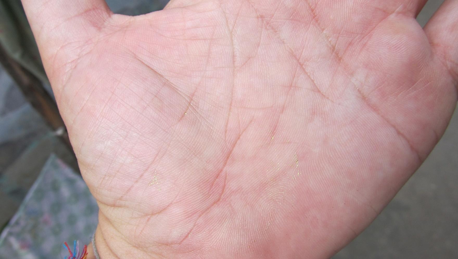 Zbytky zlatého plátku na mé ruce